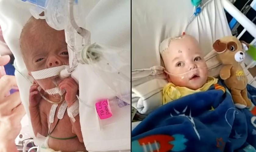 Kingston Lane passou os primeiros 10 meses de vida em uma batalha. (Foto: Brittany Lane/Facebook|WFIE)