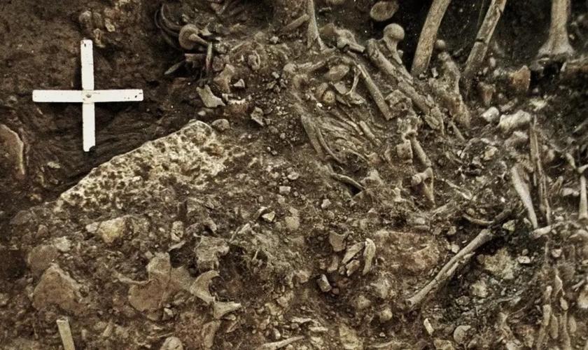 Restos mortais de uma mulher de 20 anos que foi morta pela primeira grande pandemia. (Foto: Karl-Göran Sjögren/Universidade de Gotemburgo/BBC News Brasil)