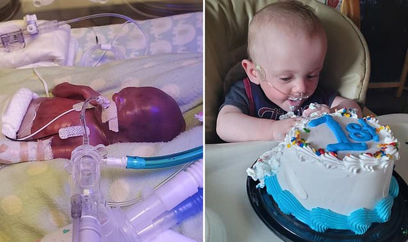 Richard Scott William Hutchinson, menor bebê do mundo, completou 1 ano. (Foto: Guinness World Records)