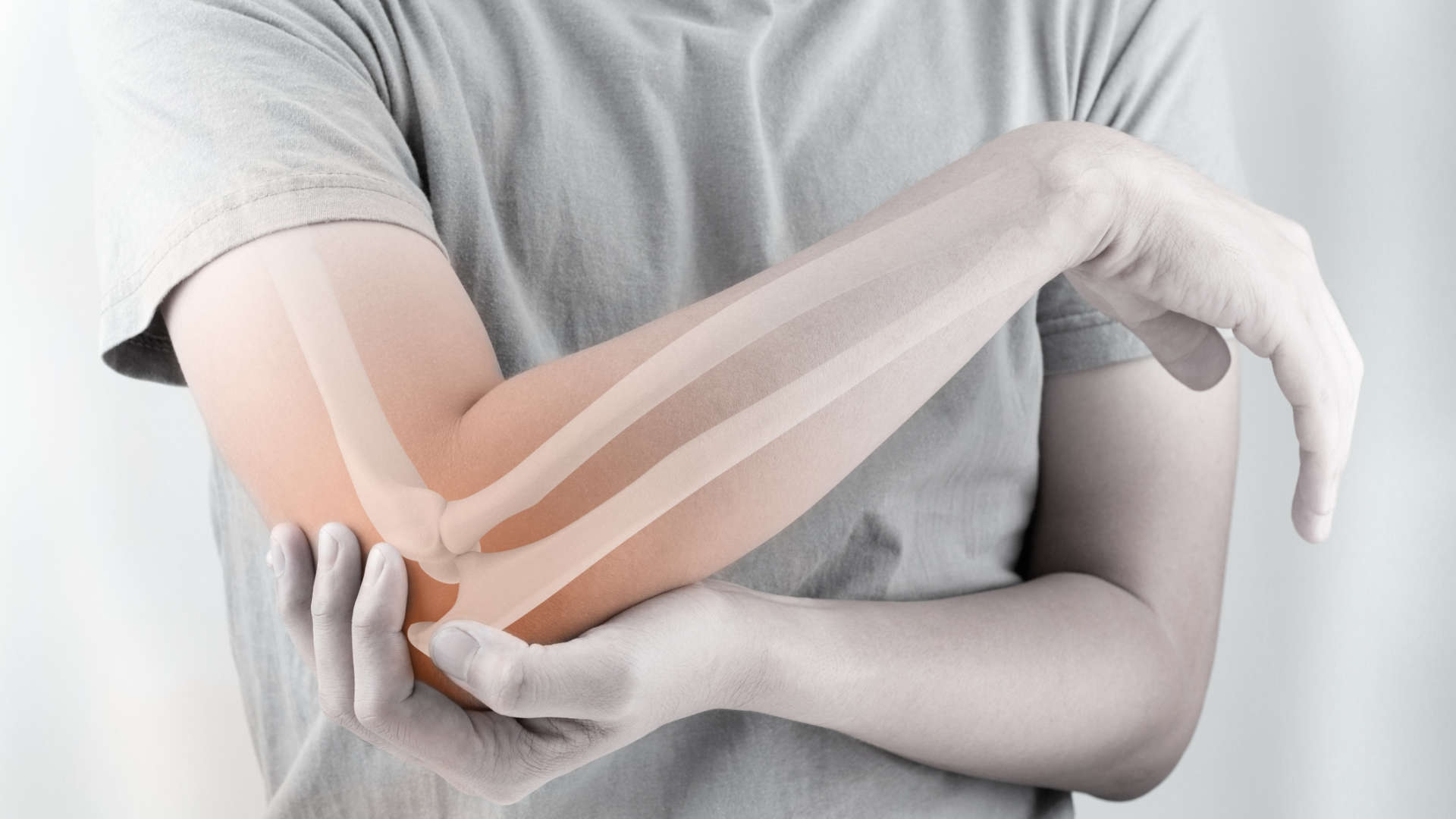 Mitos e verdades sobre osteoporose