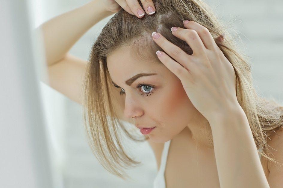 Conheça causas e tratamentos da calvície feminina