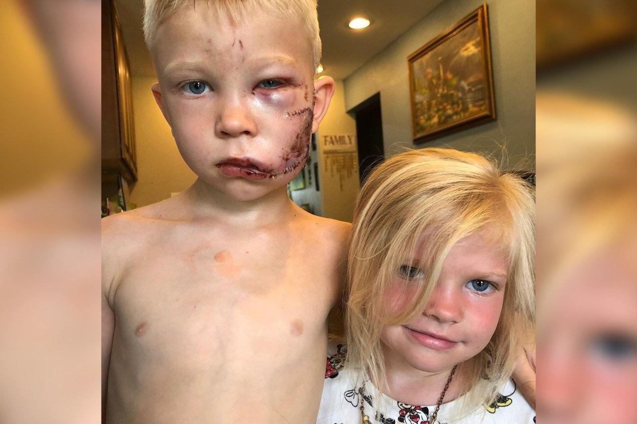 """Pastor se inspira em menino que salvou irmã de ataque e orienta homens: """"Faça o mesmo"""""""