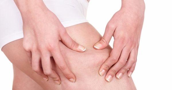 tratamentos anti celulite
