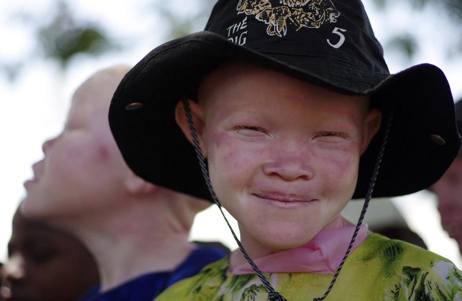 """Rejeitada por ser albina, jovem africana encontra paz em Jesus: """"Deus me fez bonita"""""""